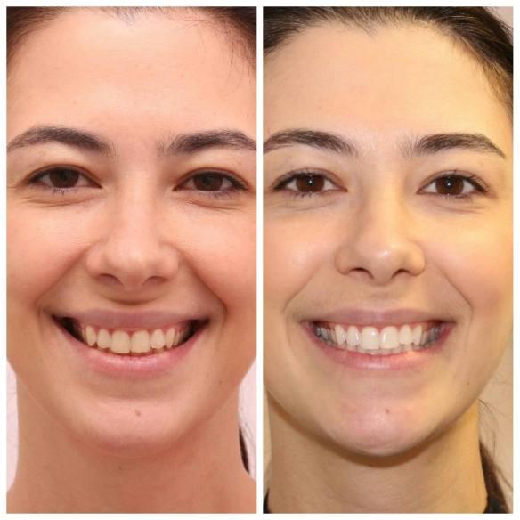 Clareamento Dental A Laser No Instituto Novva Em Caxias Do Sul Rs